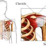 ortho-shouldertendinopathy-390x241